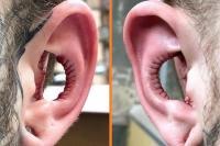 binnenkant van oren verwijderen